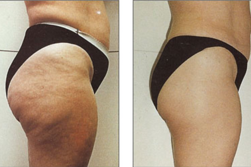 Endermology Cellulite Removing Special - 4 Treatments