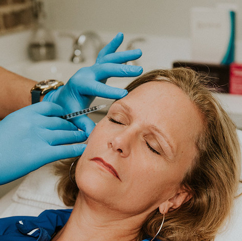 Fillers & Injectables