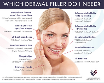 Which Dermal Filler Do I Need
