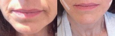 Lower Face/Jowl/Chin PDO Lift