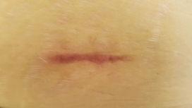 Narben entstören, Narbenentstörung, Narben behandeln, Narbenbehandlung, Narben Praxis Solothurn und Bern
