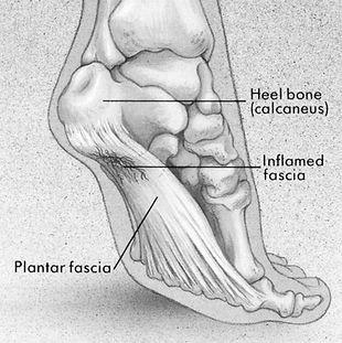 plantar fasciitis-Foor Diagram_edited_ed