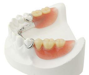 prothese dentaire dentier ppa resine stellite pas cher chirurgien dentiste