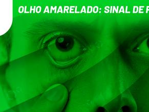 Olho amarelado: sinal de perigo