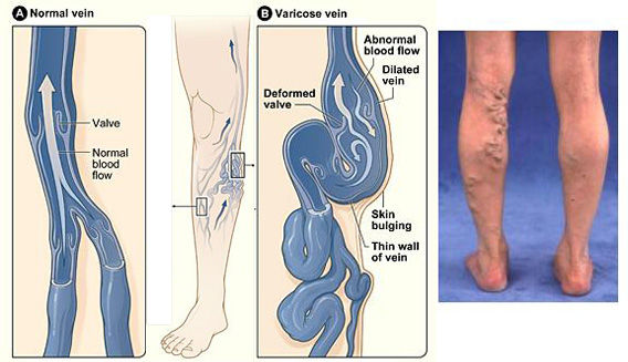 Get rid of varicos veins with argan oil in songapor