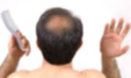 Using Argan Oil for Baldness and hair fall, buy pure argan oil in singapore