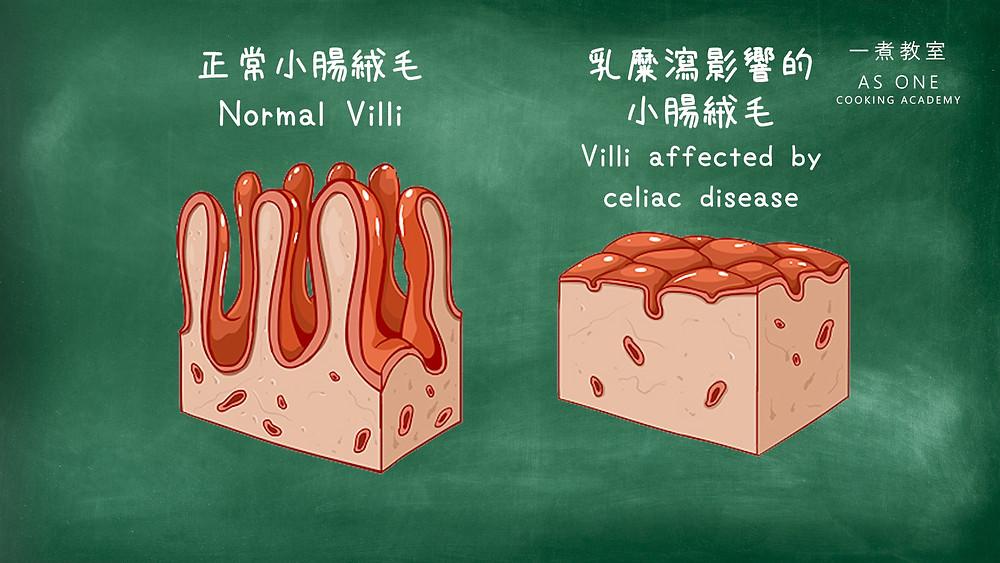 對比: 正常小腸內壁和乳糜瀉患者的受損小腸內壁