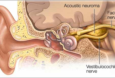 New publication! Audiologist-led screening of acoustic neuromas.