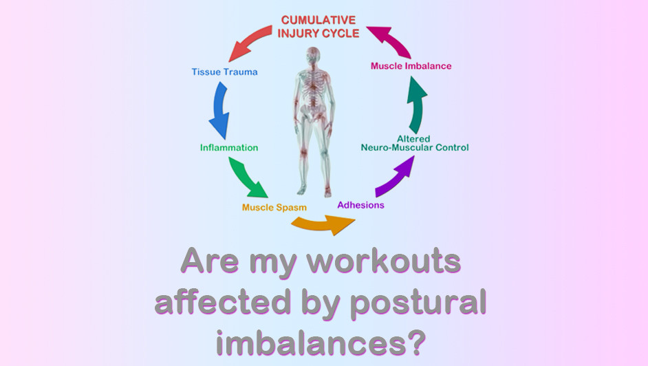Is my Posture Totally Wacked Out?
