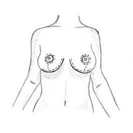 Cirurgia de seios