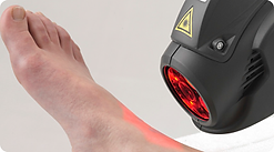 MLS-Laser-Therapy-Foot-Pain-Treatment-Fo