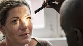 Diagnosing Glaucoma