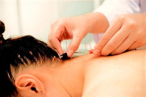 eletro-acupuntura-acupuntura-tradicional