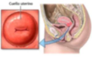 Incompetencia cervical y cerclaje cervic