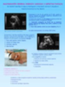 Malformacion cerebral compleja asociada