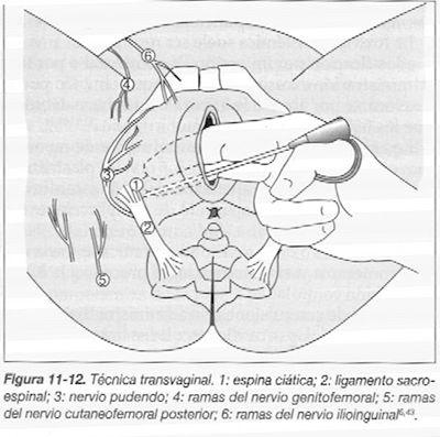 Anestesia transvaginal.jpg