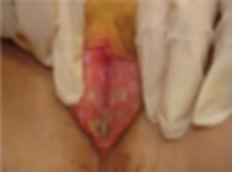 ulcera genital.jpg