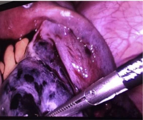 necrosis ovarica.jpg