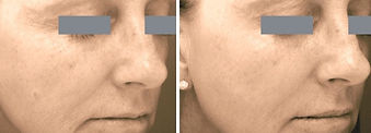 needling%2520begore%2520and%2520after_02