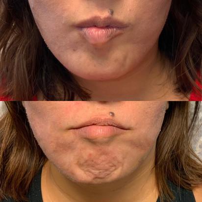 Botox Chin Treatment.JPG