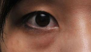 Eyebags_before