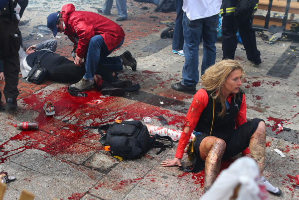 BOSTON - APRIL 15: Victims are in shock and being treated at the scene of the first explosion that went off near the finish line of the Boston Marathon.  (Photo by John Tlumacki/The Boston Globe via Getty Images)