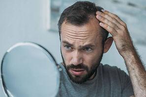 man hair loss.jpg