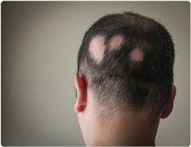 alopecia, hair loss, disorders
