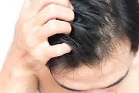 itchy scalp, disorders, dandruff, hair loss, inflammatory disorders