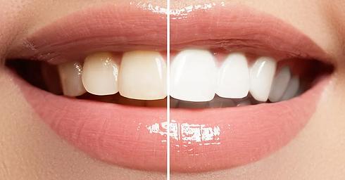 Zoom-Teeth-Whitening-960w.webp