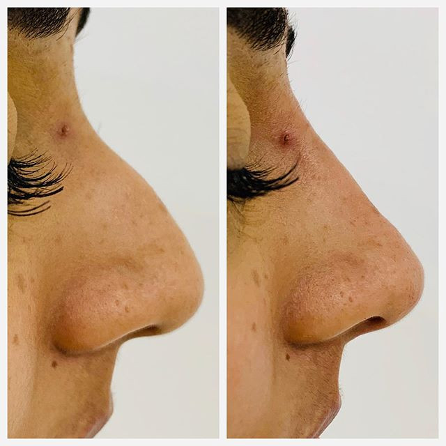Non-surgical rhinoplasty (nose job)