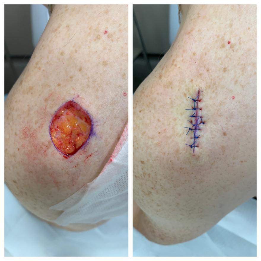 Skin cancer surgery