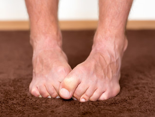 Did you know Cannabis Can Help Decrease the Pain from Peripheral Neuropathy?