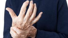 Can Cannabis Ease the Pain of Arthritis?