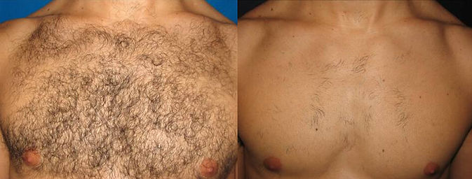 before and after laser hair removal