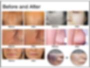 SHR IPL Hair removal and skin rejuvenation