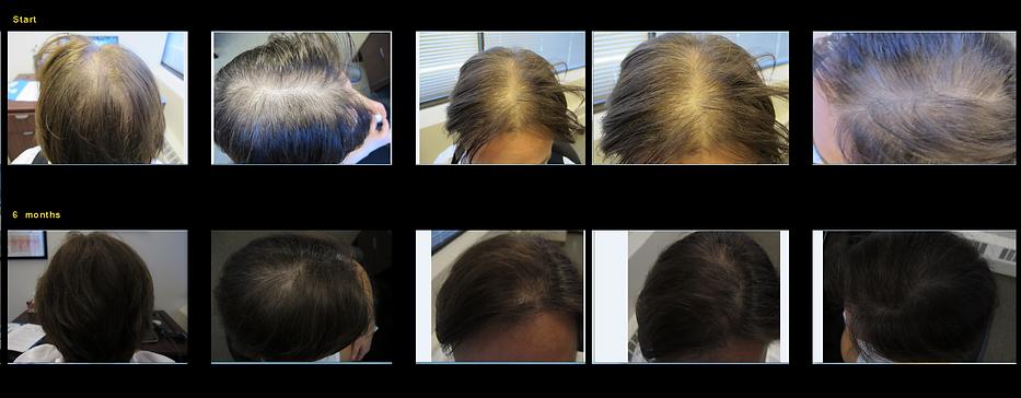 Laser & LED hair regrowth machine LLLT