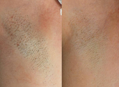Hair removal season--how to prevent Folliculitis after hair removal