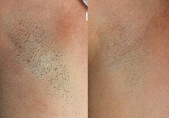 Hair Removal Season How To Prevent Folliculitis After Hair Removal