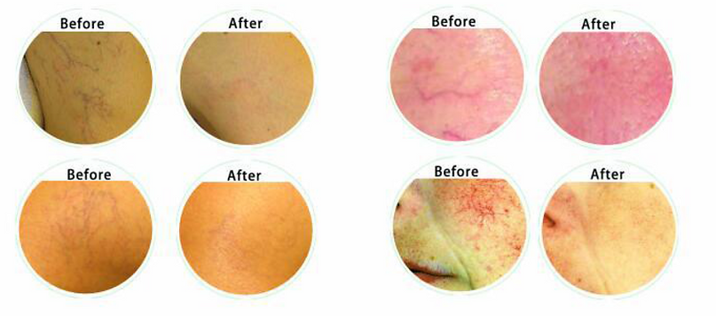 before and after vein vascular removal machine