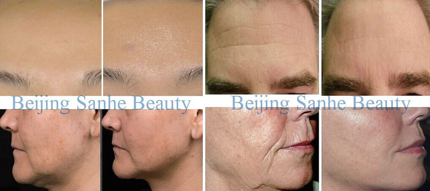 before and after Micro-needle RF & Fractional RF system