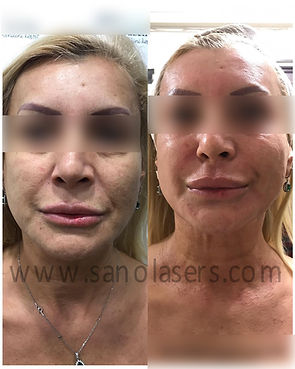 before and after microneedle