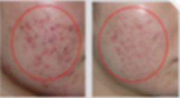 nd yag laser tattoo removal