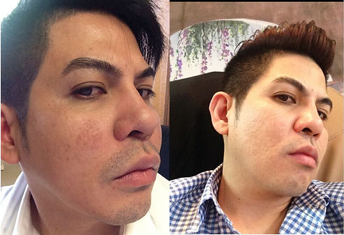 before and after laser hair removal on face