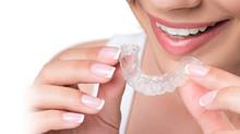 Wachstum im Dentallabor durch kosmetische Zahnkorrektur
