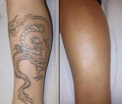 tattoo3.png