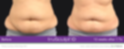 idstomach2.png