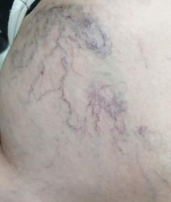spider vein treatment in Thane