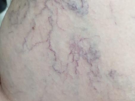 Varicose veins laser