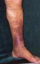 varicose veins thane